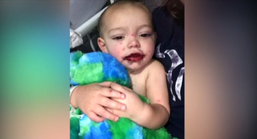 Mother warns of dangers of cold sores after her baby got herpes